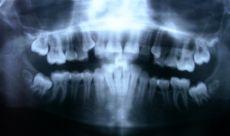 Ejemplo de ortopantomografía